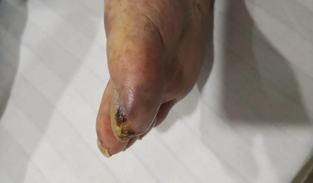 多少个夜里被「老烂脚」疼醒,这样的疾病该如何治疗?