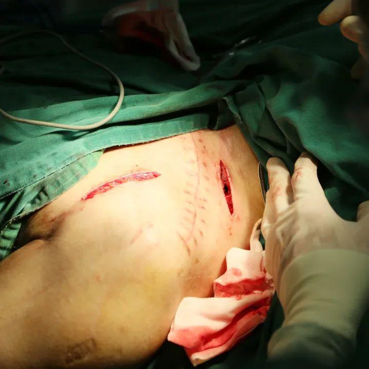 男子不慎摔倒导致左手活动障碍?医院一个手术让他恢复如初