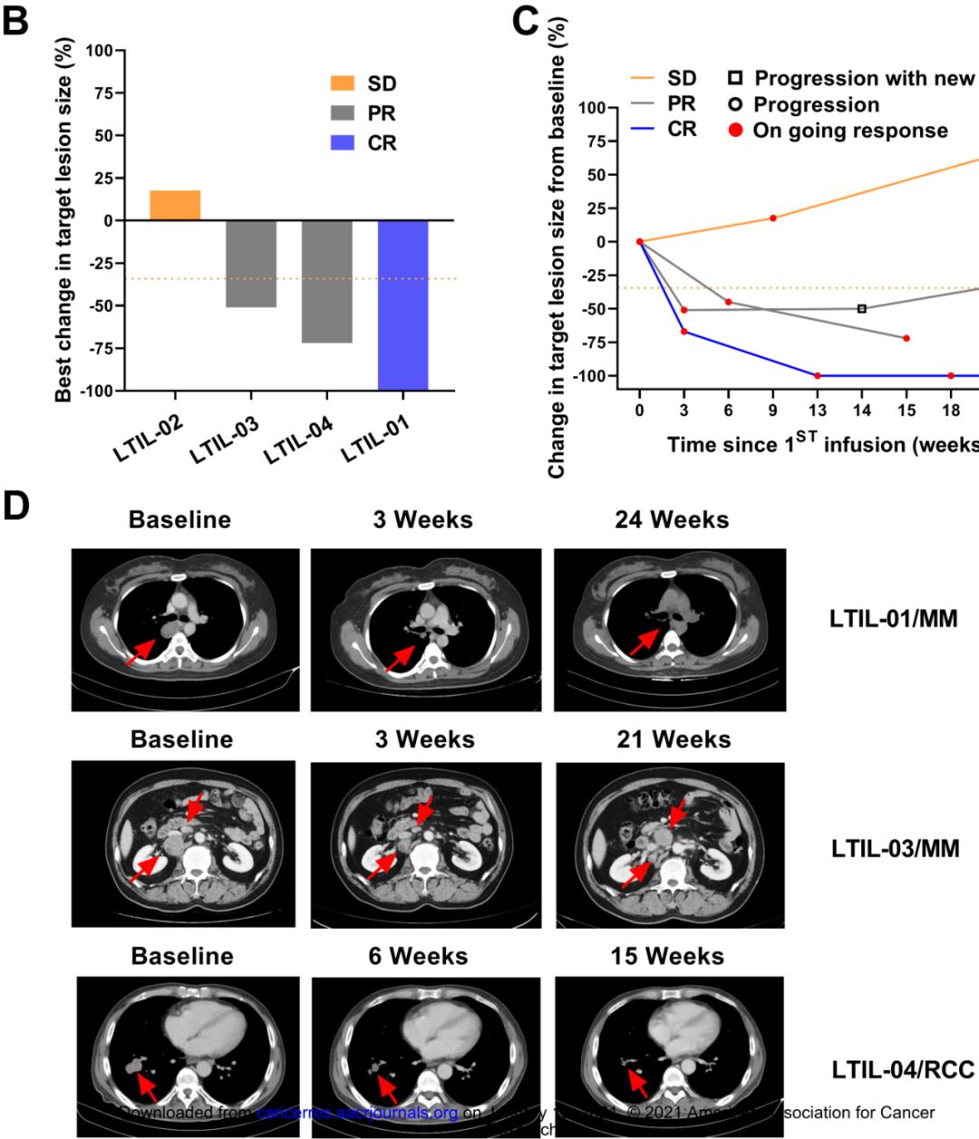 河南省肿瘤医院创新型肿瘤免疫细胞疗法成果在国际权威期刊《癌症研究》发表