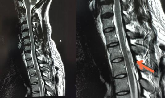 90 后小伙做俯卧撑致下身「瘫痪」 ,西安高新医院紧急展开诊治