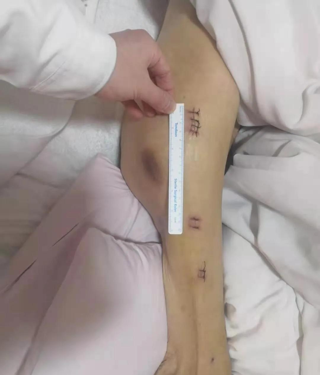 西安高新医院:帮老人战胜「死亡骨折」,再难也要试一试