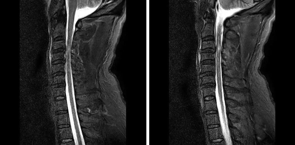 那些因车祸截瘫的患者,最后都是怎么治愈的?