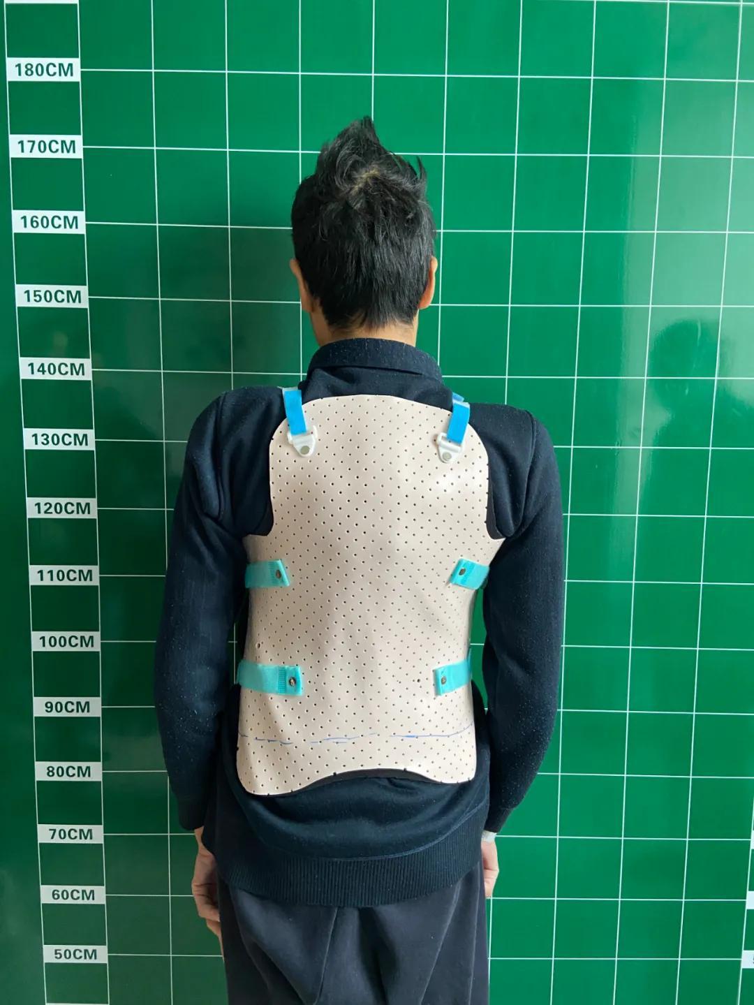 杭州市萧山区中医院再次成功挑战脊柱畸形高难度手术