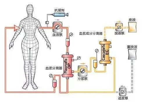首例双重血浆置换在我院成功开展