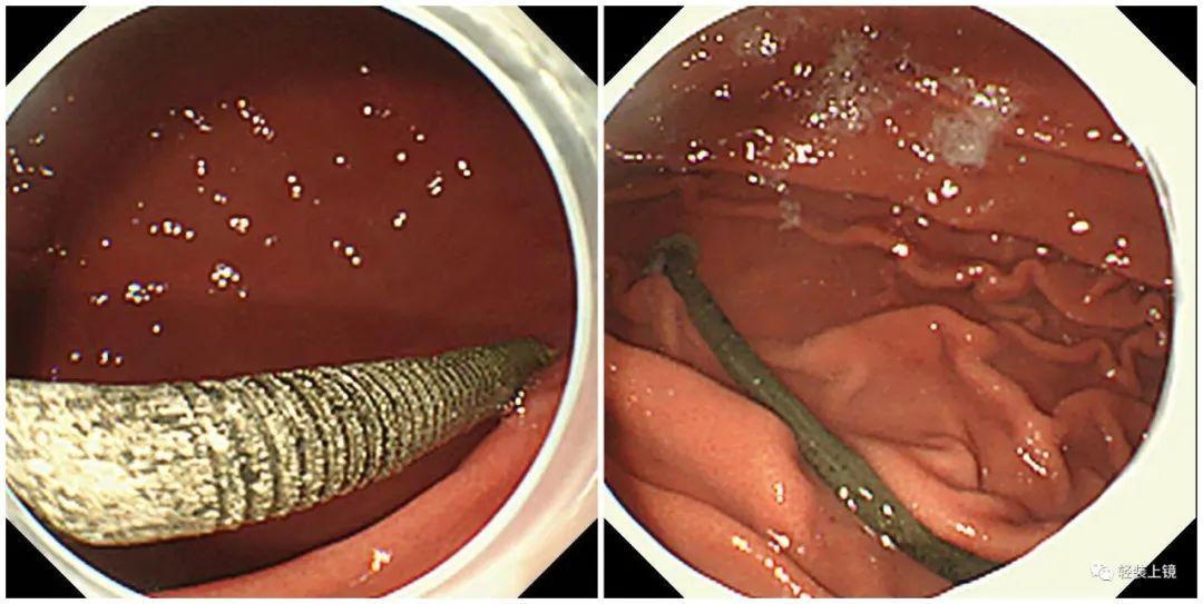 本想内镜下探查肿瘤,竟发现是 15 厘米大铁钉