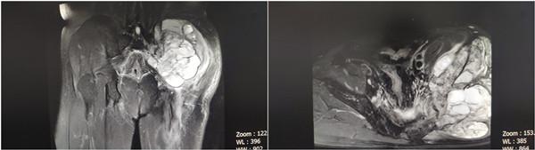 多学科 MDT 协作完成精准切除骨盆巨大肿瘤术
