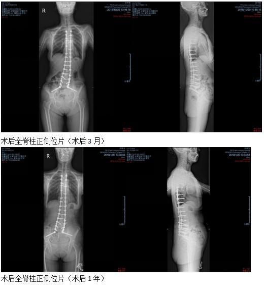 退变性脊柱侧弯矫正术