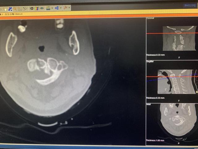 南溪山医院成功实施该院首例寰枢椎椎弓根螺钉治疗齿状突骨折伴寰枢椎不稳手术