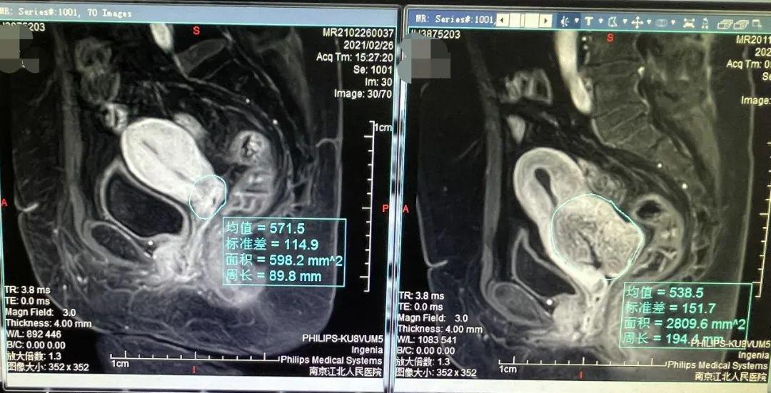 抗癌「神器」——直线加速器,为肿瘤患者实现精准放射治疗