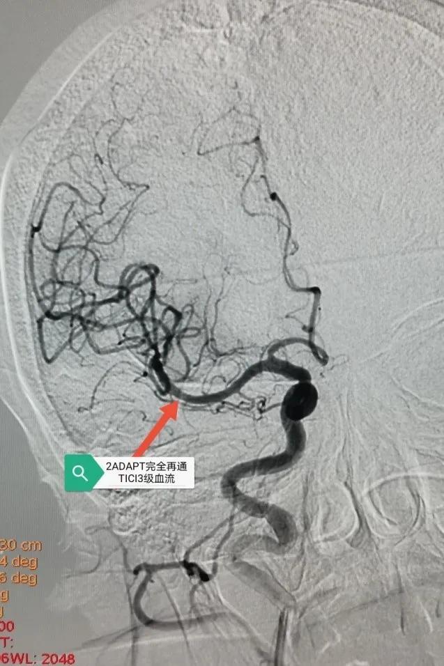 再破禁区!大兴脑科医院成功救治一位 90岁 重症脑梗死患者