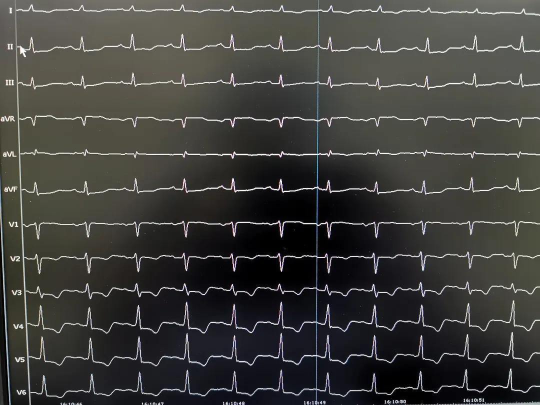 六旬男子反复心悸胸闷 13 年,重庆北部宽仁医院让他重获「心」生