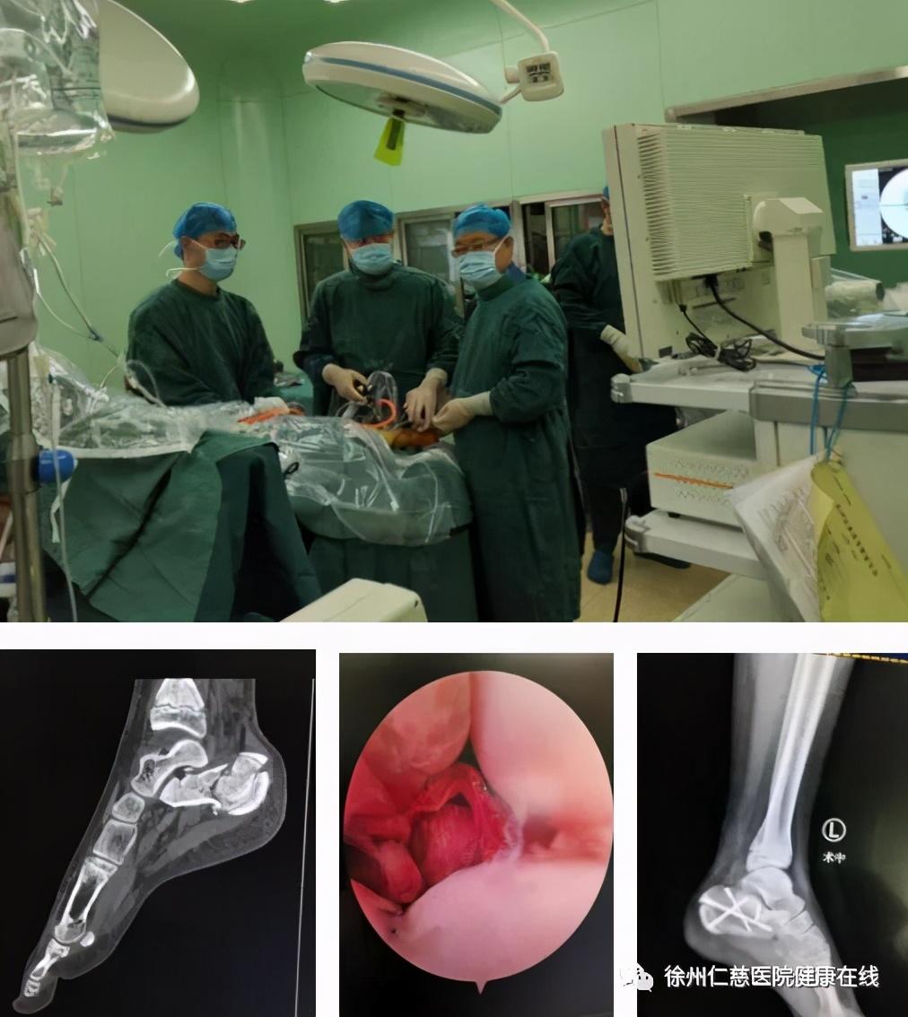 徐州仁慈医院多位专家登上 SICOT 足踝高峰论坛