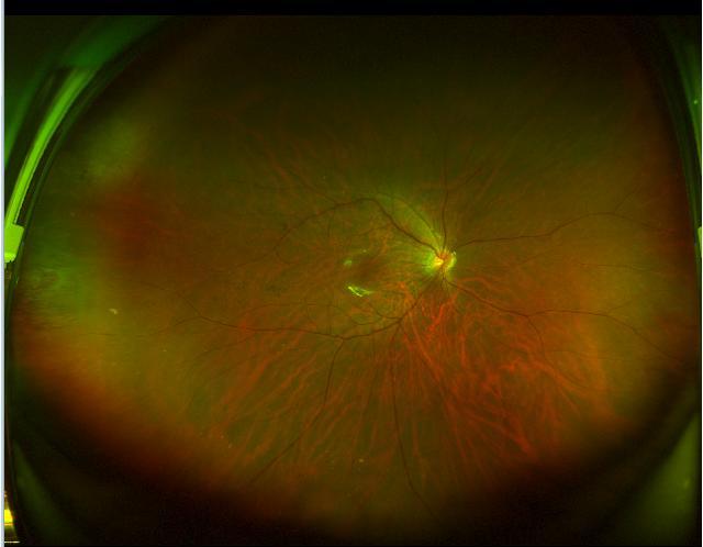 杭州爱尔「争分夺秒」24 小时内完成孔源性视网膜脱离手术救治