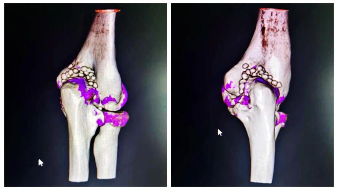 程序员肘关节竟长 30 颗「珍珠」 长期伏案小心滑膜软骨瘤病找上门