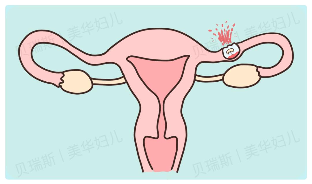 大出血!休克!40 岁孕妇险遇「宫外孕破裂」,杭州美华上演生死大营救