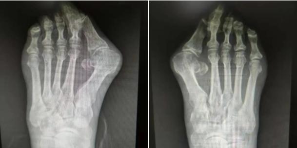 足踝外科医生提醒:拇外翻不可轻视,得治!