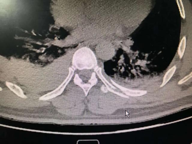 工人八米平台摔落致多处骨折 大兴「胸外+骨科」强强联合手术