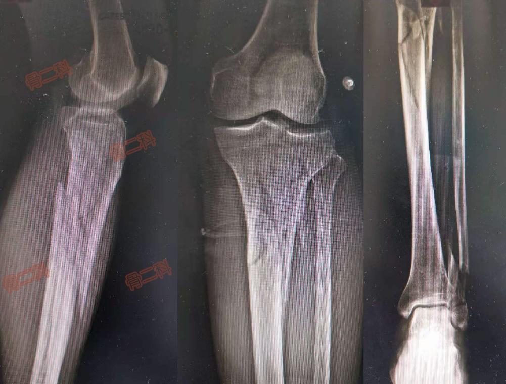 天津市蓟州区人民医院:小腿缺皮怎么办?腓肠神经营养血管皮瓣来帮忙