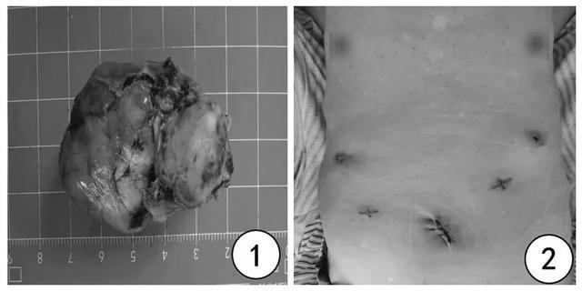「软硬兼施」切除胃巨大间质瘤