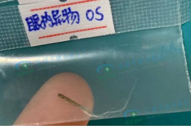 深圳男子被 1 厘米铁条扎入眼内,2 月后才发现…