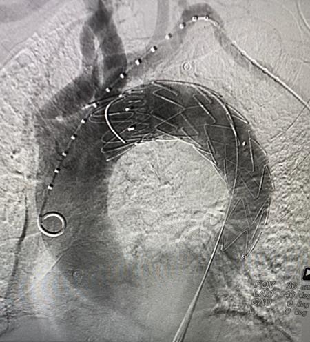 心血管病院为 88 岁高龄老人实施主动脉夹层腔内隔绝术