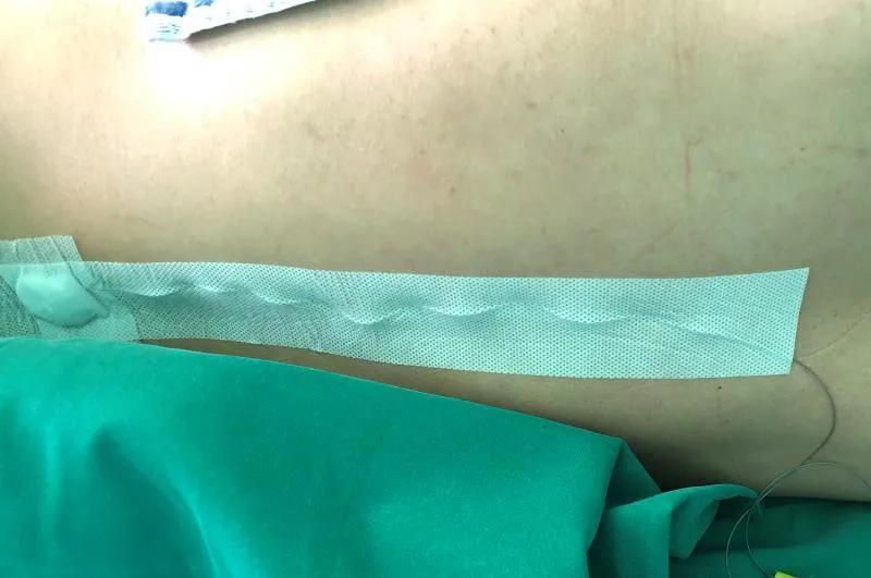 腰-硬联合阻滞时,麻醉医生在你背后到底做了什么?