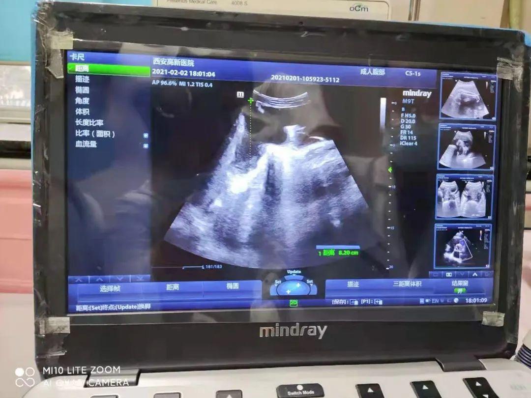 「大肚星人」救星——新技术助力肝硬化腹水患者诊疗