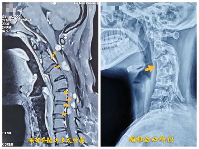 26岁,颈椎一共7节,颈部脊髓却发现8个肿瘤……