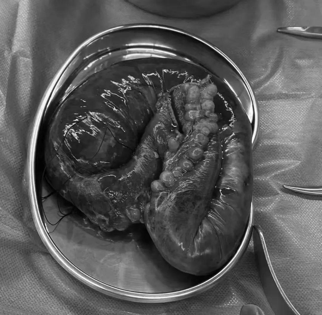 腹部疼痛难忍 医生急诊手术挽救生命