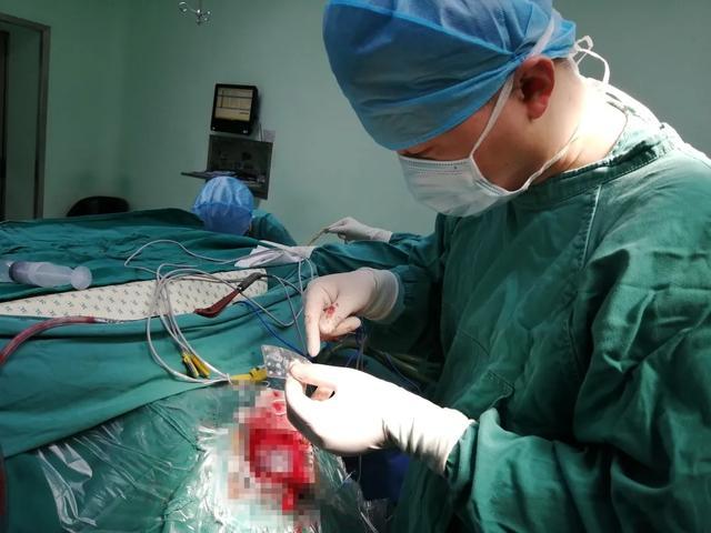 摆脱 18 年难治癫痫!绵阳市中心医院手术精准治疗轻松搞定
