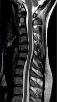 当惯了「低头族」,颈椎病患者说,除了脖子发僵!最折磨人的是头晕!