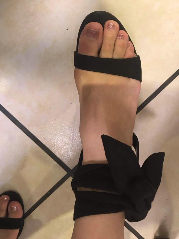骨科医生:让美丽从脚开始