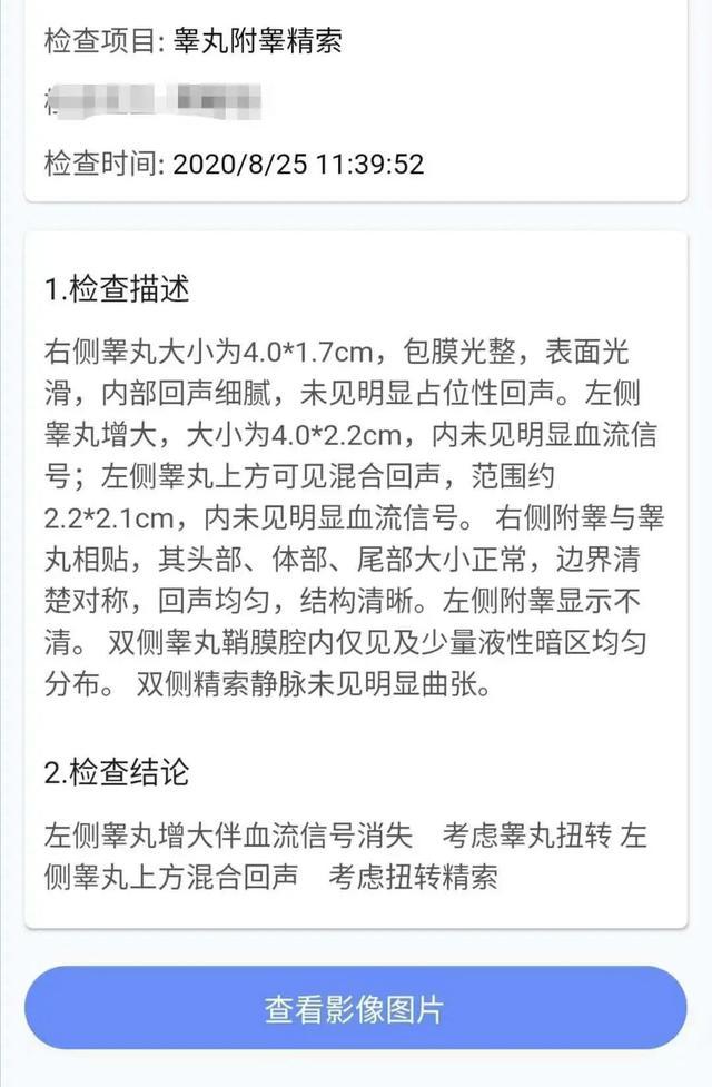 树兰医院:七夕保「蛋」战 | 20 岁小伙,睾丸扭转 720 度