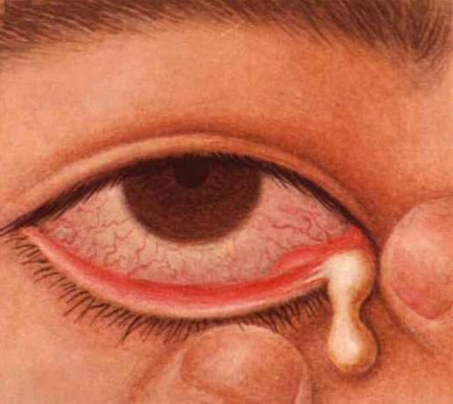 同样是肿,急性泪囊炎与麦粒肿有什么不同?