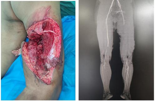仁慈医院移植腓肠神经「电缆式」移植修复全身「最大神经」