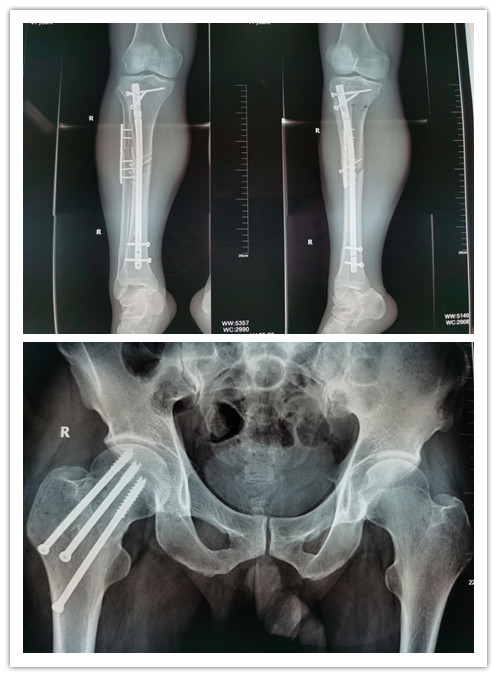 【走近医学】保住折断的股骨头