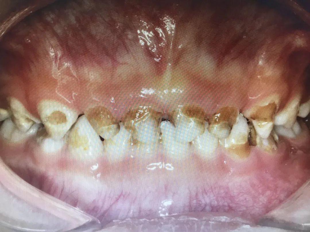 4 岁孩子牙齿全坏了!只因为父母的这些习惯……
