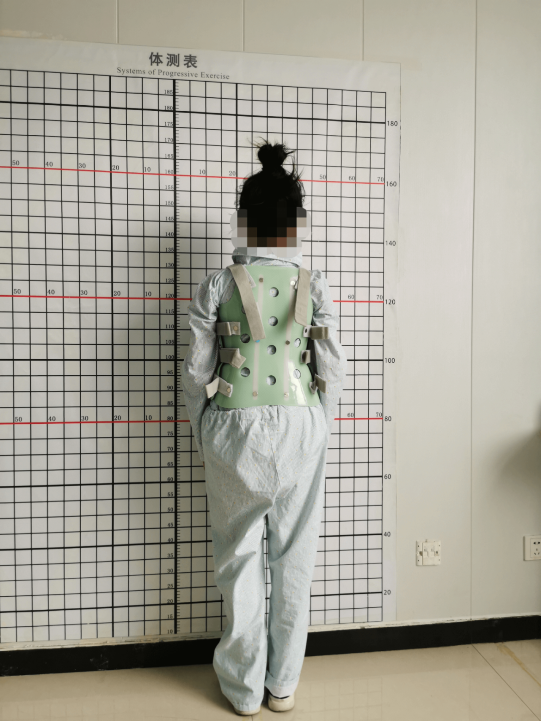 脊柱侧弯八年后实施矫正手术,19 岁女孩「增高」5 厘米