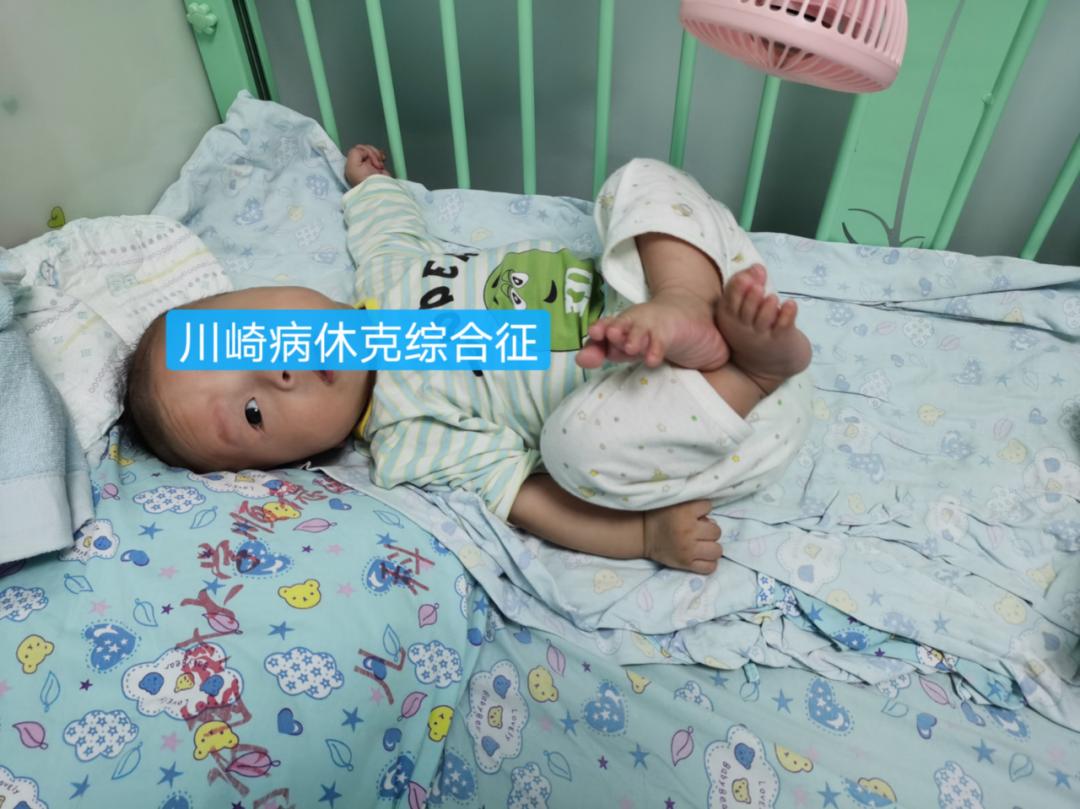 点赞!顺德医院成功抢救一名 4 月大的川崎病合并休克综合征重症患儿