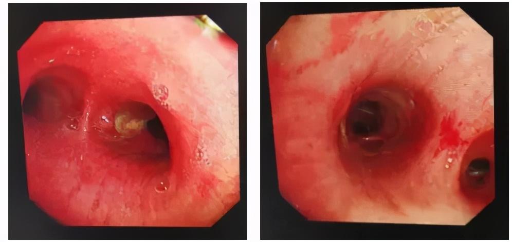 这一束光能让肺癌肿瘤细胞「见光死」