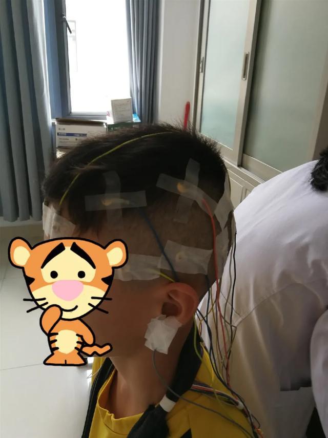福建国药东南医院开展 24 小时「动态脑电图」啦!