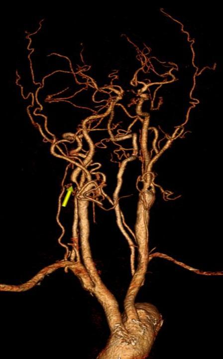 西安大兴医院首例颈动脉内膜斑块切除术成功实施