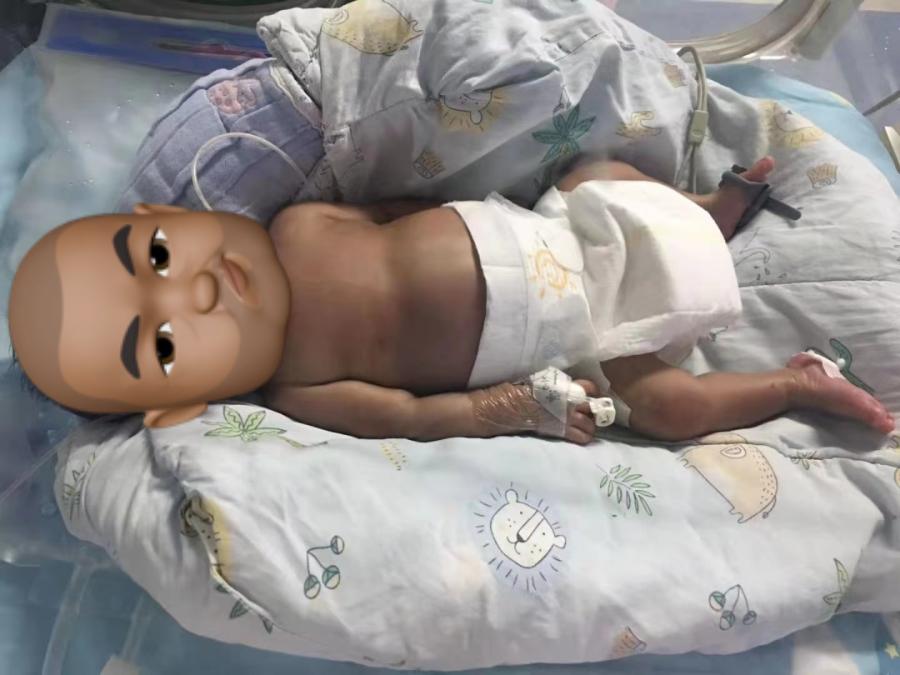 桂林医学院附属医院成功为970克早产儿实施高难度心脏手术