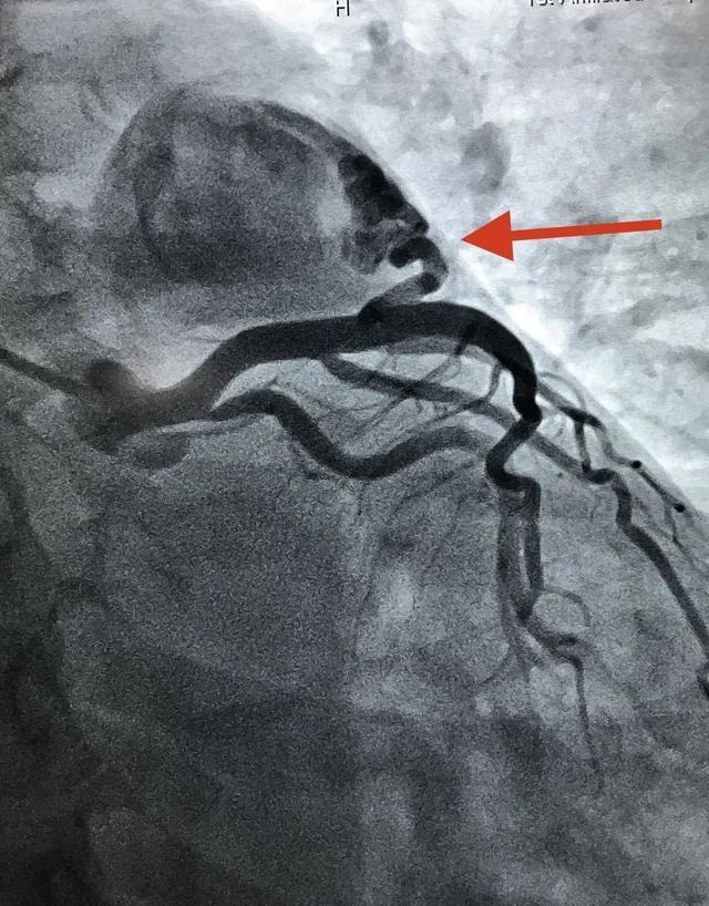 广西中医药大学第一附属医院成功实施首例双侧冠状动脉—肺动脉瘘介入栓塞术