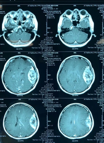 一少女颅内长有 10 公分巨型肿瘤,医生历时 7 个半小时成功「排雷」