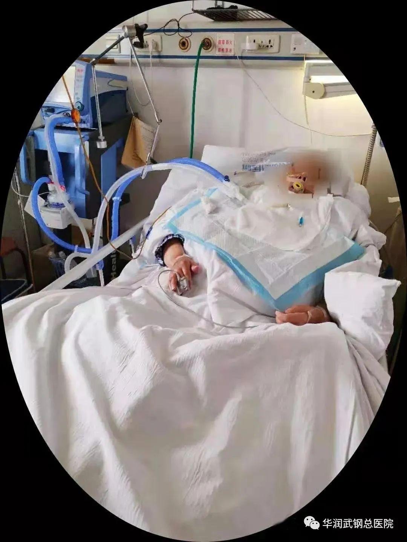 华润武钢总医院多学科护理会诊--为危重患者保驾护航