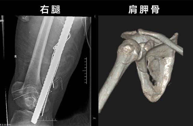 惊险!钢筋贯穿大腿,前海人寿广州总医院骨科团队危难时刻显身手!