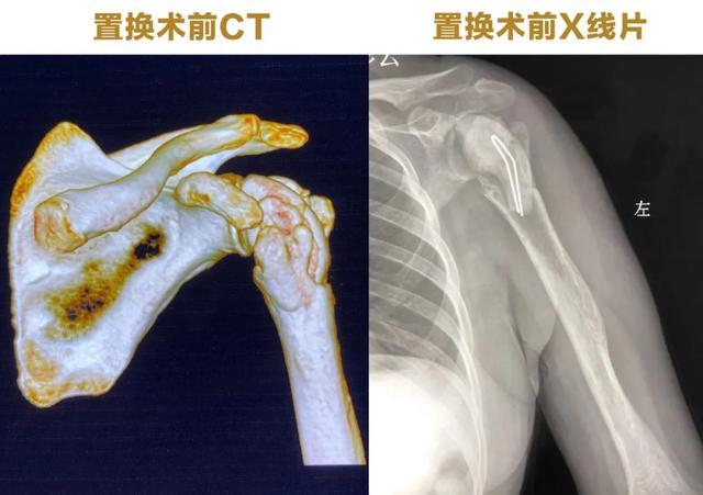 西安大兴医院骨科完成西北罕有复杂翻修反肩关节置换术