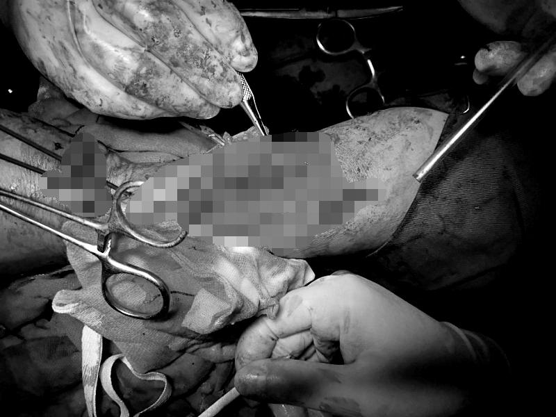 河南信合医院骨二科团队 历时五小时为伤者接活四只断指