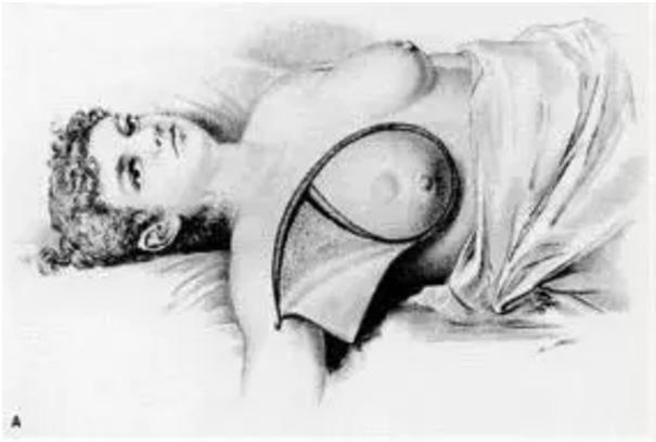 那些年,女性被切除乳房的「黑」历史